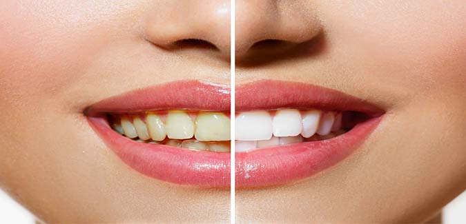Quick And Easy Teeth Whitening Tips At Home In Urdu